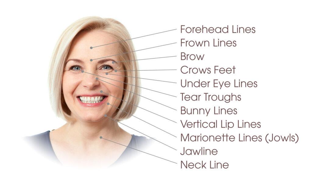 Botox® Cosmetic Treatment Areas