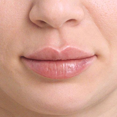 Dermal Filler Lip Treatment Bakersfield