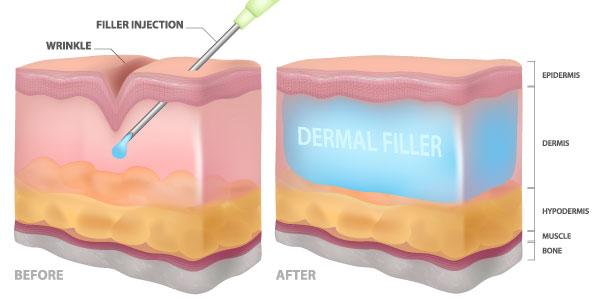 How do dermal fillers work