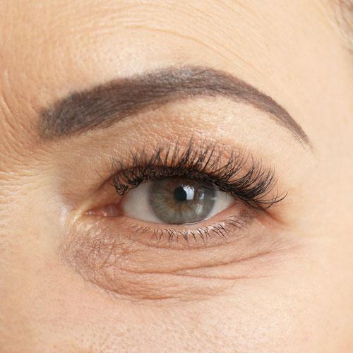 lower eyelid surgery bakersfield ca before