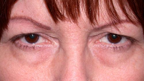 upper eyelid surgery in bakersfield to eliminate droopy eyelids